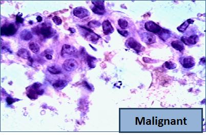 fna-malignant1