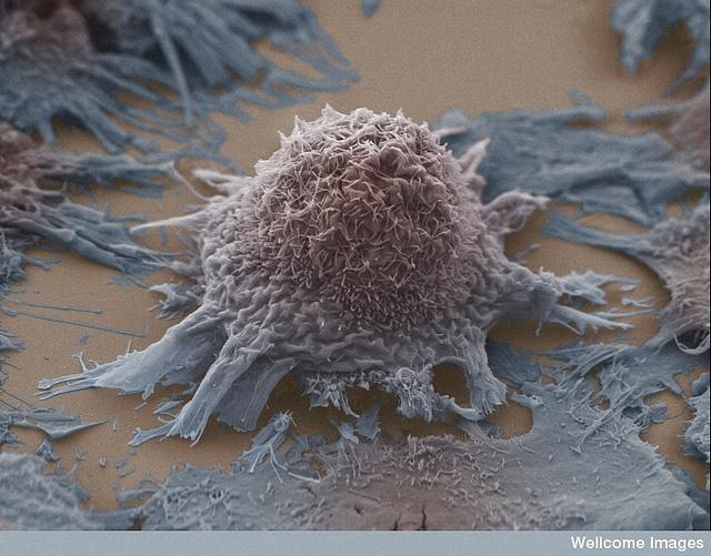 癌症是安全模式的結果?