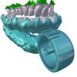 3D列印牙刷 刷牙6秒鐘搞定