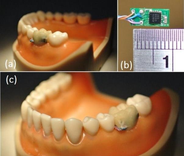 Teeth Probe ISWC