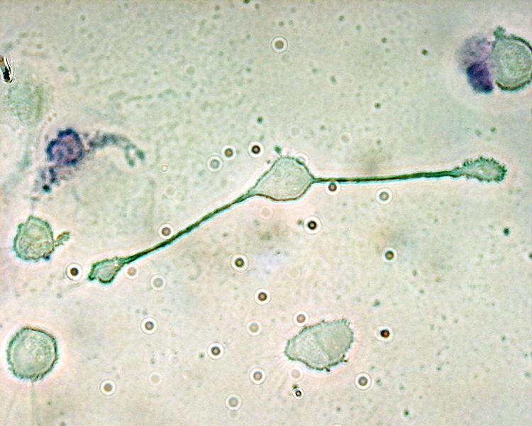 750px-Macrophage