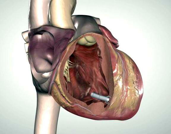 miniaturization pacemaker