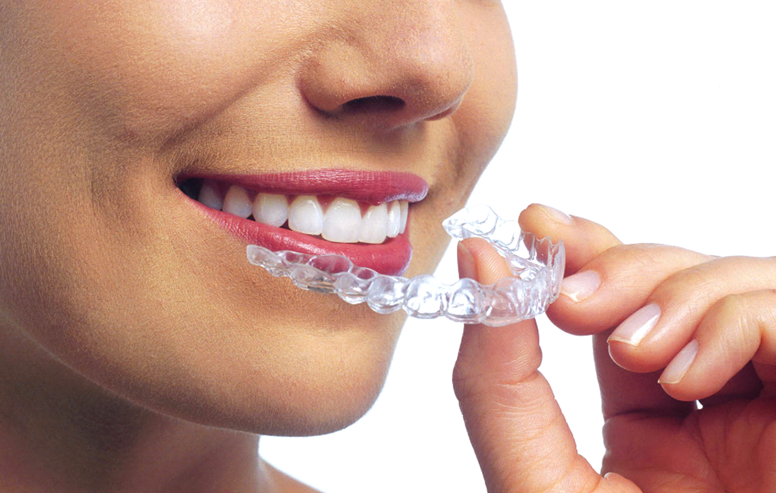 INVISALIGN NEW SYSTEM