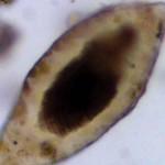 全世界最早寄生蟲中東墓穴出土