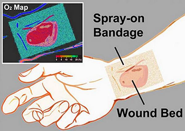 Paint-on bandage