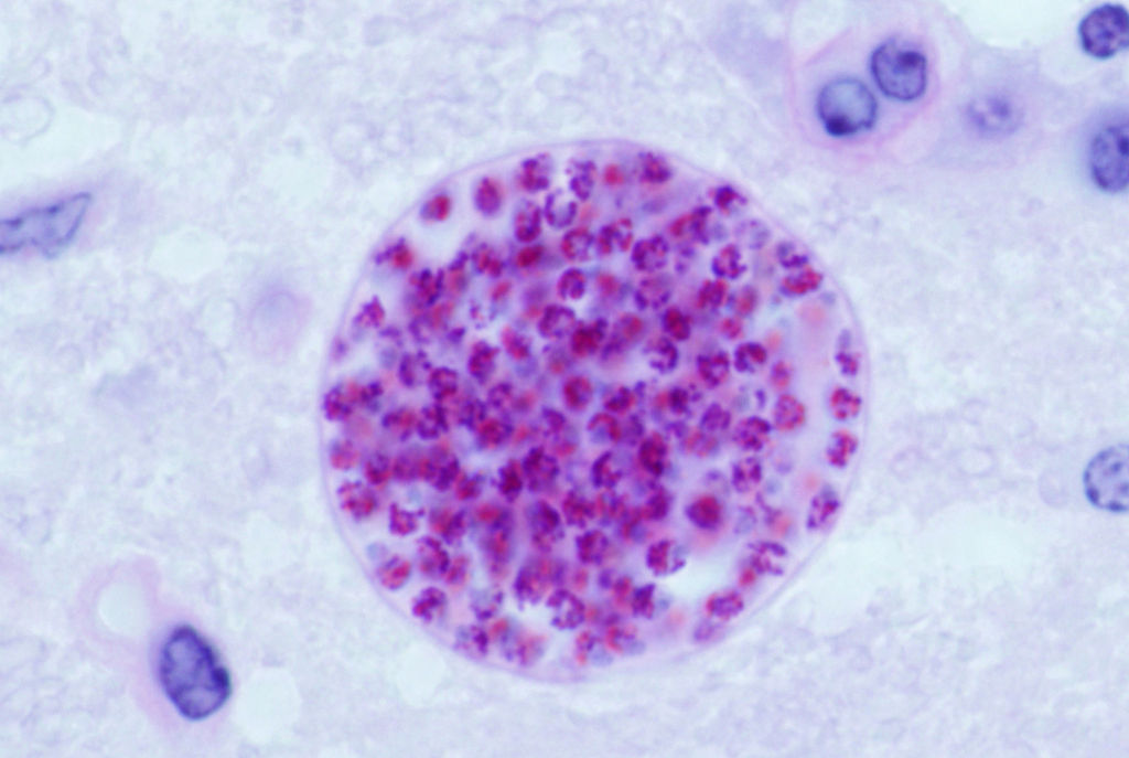 1024px-Toxoplasma_gondii_tissue_cyst_in_mouse_brain
