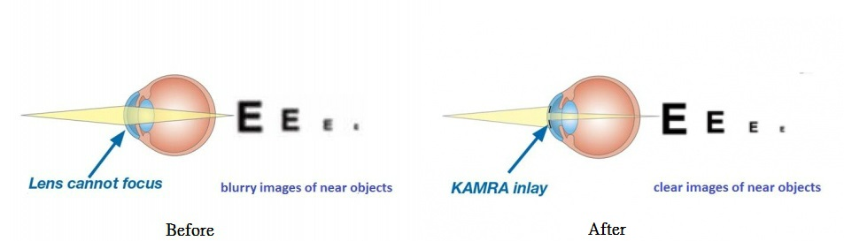 500px-Kamra1121