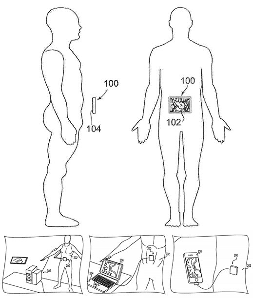 rothberg_patent_ultrasound