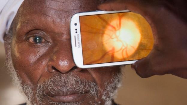 Retinal-imaging-by-Peek_5-