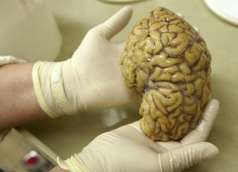 美國科學家成功培養出人類大腦