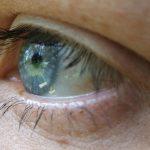 不再只是「假」眼,仿生眼將能幫助特定盲人恢復視力