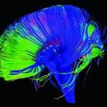 再厲害的程式都沒有人腦強!DARPA 打造人腦、電腦溝通晶片