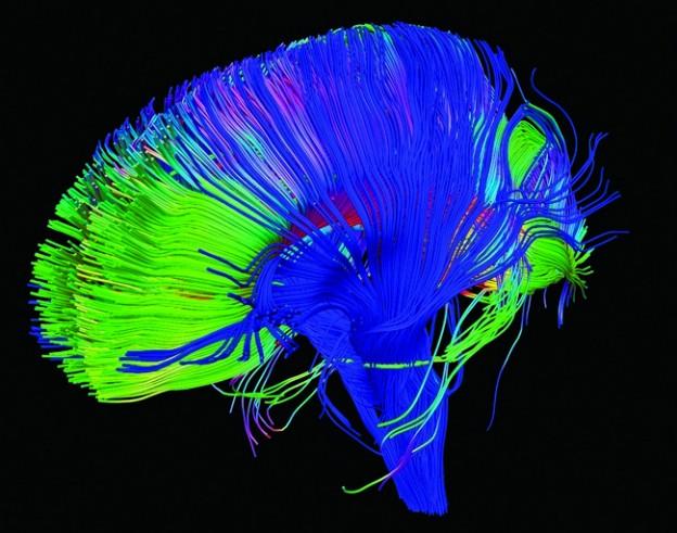0124-DARPA brain