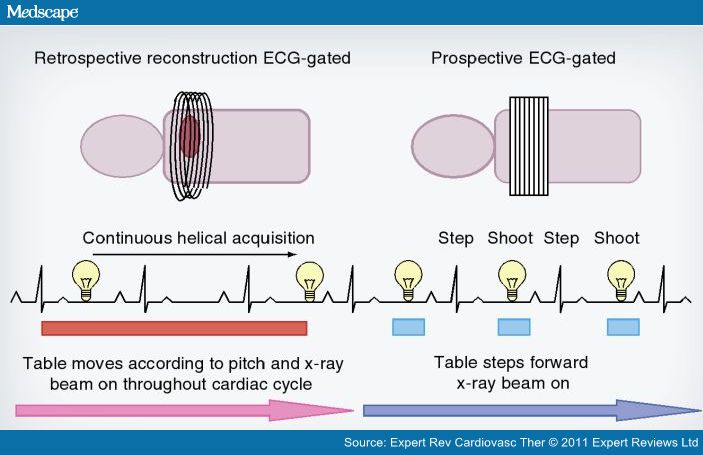 Prospective EKG triggering