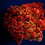 愛滋病治療重大突破!科學家成功從人類免疫細胞上移除 HIV-1 病毒