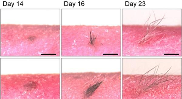 skin hair