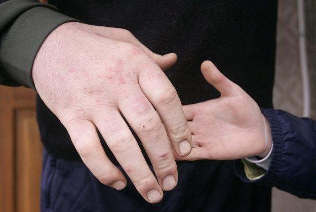 達志影像不得重複使用!!! Ukrainian Leonid Stadnyk ((L) shakes hands with his friend in the village of Podolyantsi in Ukraine's Zhytomyr region, about 200 km (124 miles) from the capital Kiev, March 23, 2008. Stadnyk, at 2.53 metres (8-foot, four-inch), is the world's tallest man according to the Guinness World Records. Picture taken March 23, 2008. REUTERS/Handout (UKRAINE).  FOR EDITORIAL USE ONLY. NOT FOR SALE FOR MARKETING OR ADVERTISING CAMPAIGNS. - RTR1YPB3