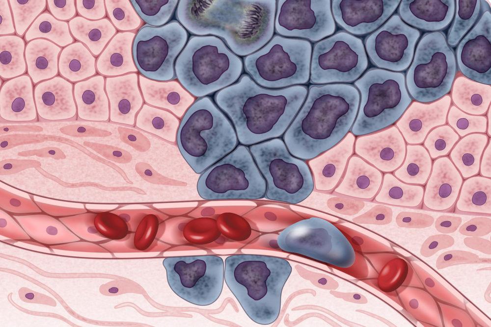台灣女性最常罹患之癌症──乳癌
