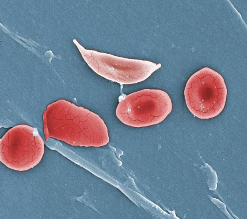 次世代超音波,一滴血找出病源