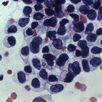 基因特徵重分類 癌症療法將大幅增加