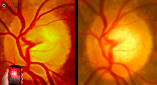 Peek-Retina-comparison-image-640x346