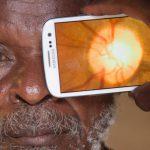 Peek Retina:智慧型手機化身簡易眼疾診斷儀器