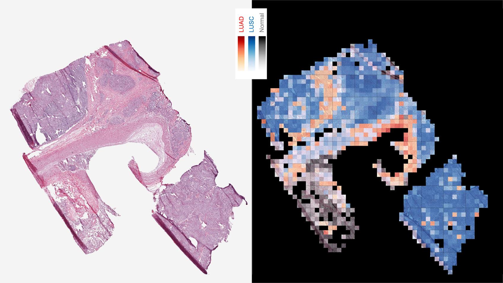 Google AI 最新應用,成功辨識腫瘤突變影像