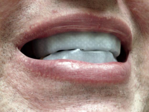 牙齒美白產品用多無害?研究指會損害象牙質膠原蛋白
