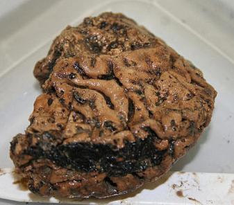 無人知曉手法,卻被妥善保存 2,600 年的赫斯靈頓大腦