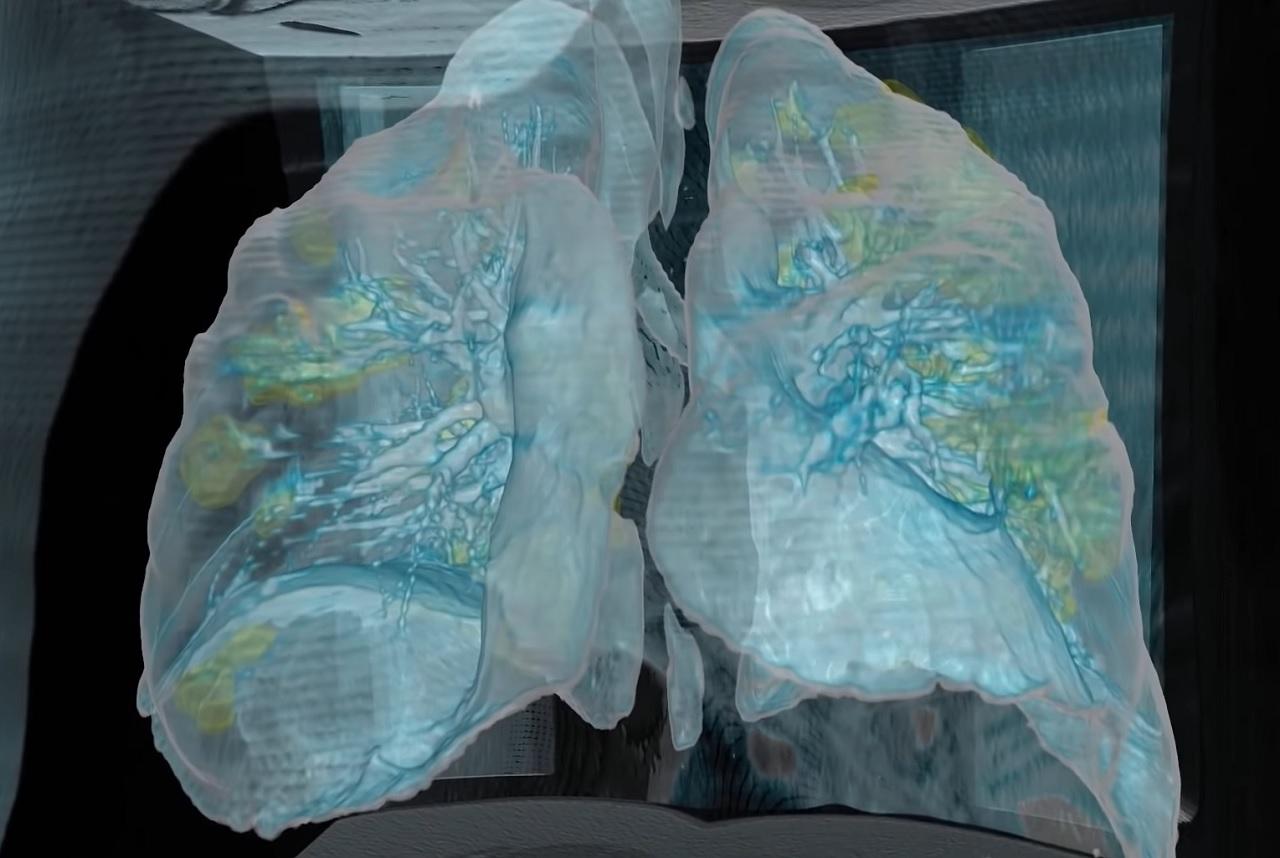 Ct 肺炎