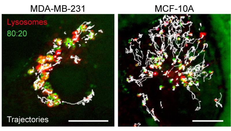 殺死癌細胞的新方法:利用帶電粒子阻塞癌細胞溶體